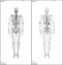 Сцинтиграфия костей скелета (Остесцинтиграфия)