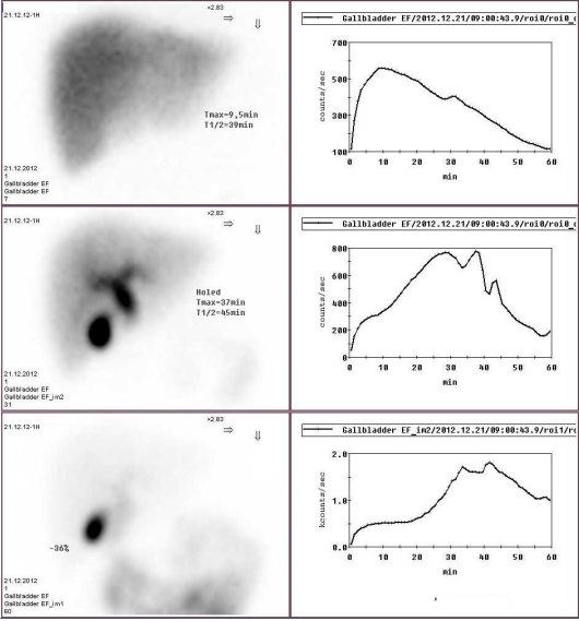 Динамическая гепатобилисцинтиграфия