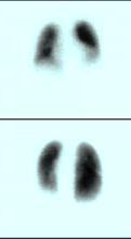Ингаляционная сцинтиграфия легких (Ингаляционная пневмосцинтиграфия)