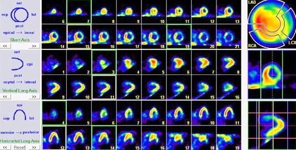 Перфузионная сцинтиграфия миокарда
